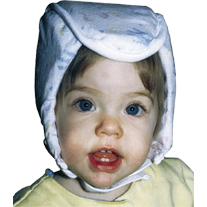 Plum's® ProtectaCap® Custom Fitting Protective Headgear for Babies
