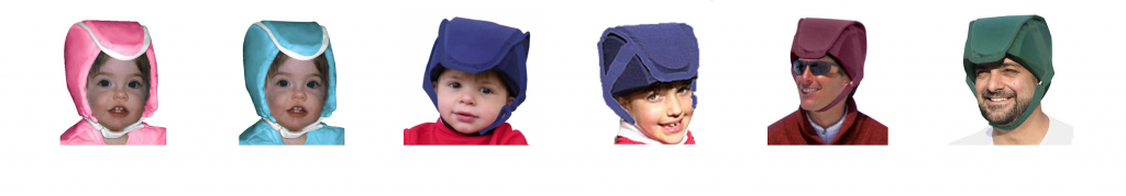 ProtectaCap+Plus® is the Extraordinary Fall Safety Helmet For Individuals with Extraordinary Head Safety Needs.